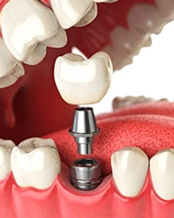 Dental Implants  mentro dental of New Carrollton