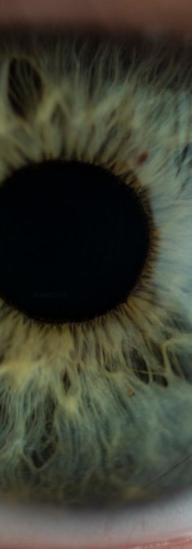 EyeCU1.JPG