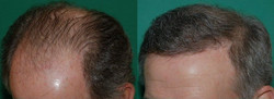 Male Pattern Baldness-Thin Base