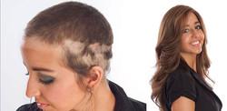 Alopecia-Full Cranial Prosthesis