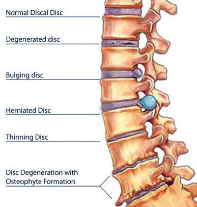 lower back pain spine image