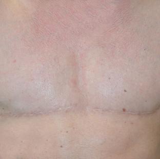 Pre 3D nipple tattoo, post gender affirmation surgery