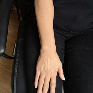 Vitiligo full arm cover