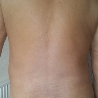 Psoriasis after camouflage