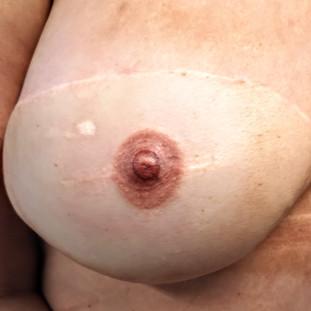 3D areola/nipple tattoo