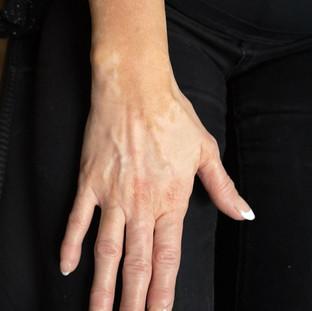 Vitiligo before camouflage