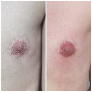 Re-pigmentation of areola after Top Surgery