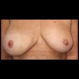 3D areola nipple tattoo
