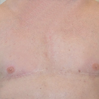 3D nipple tattoos post gender affirmation surgery