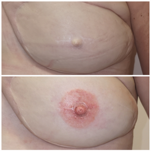 3D Areola Tattooing