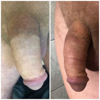 Medical Tattooing to Skin Graft