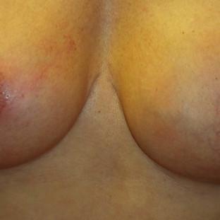 Immediately after nipple/areola tattoo correction