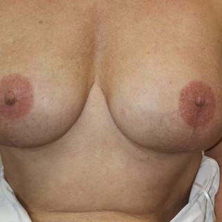 Bi-lateral 3D Areola tattooing