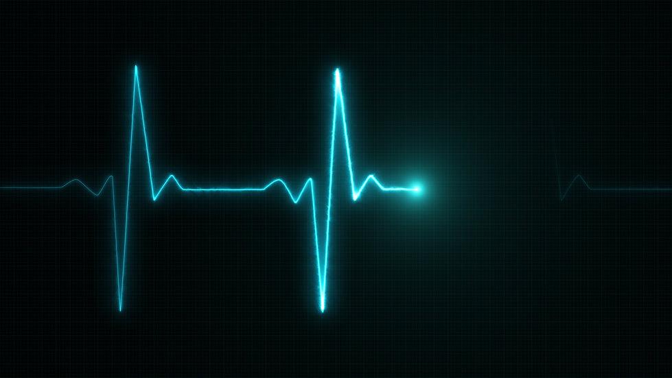 blue-cardiogram-line.jpg