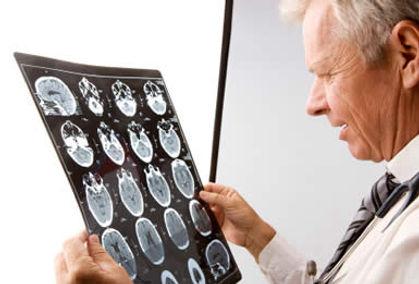 consulta com neuro neurologista