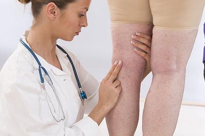 consulta com vascular angiologia