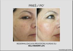hyalual-pigmentacija.png