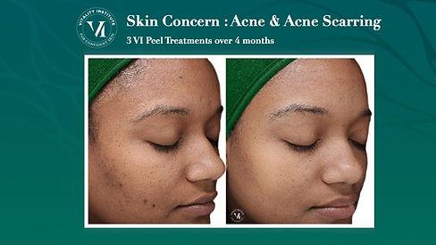 VI Peel Skin Concern_ Acne.jpeg