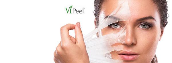 VI image Peeling_Model2-624x230.jpg