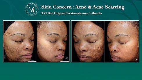 VI Peel Skin Concern_ Acne4.jpeg