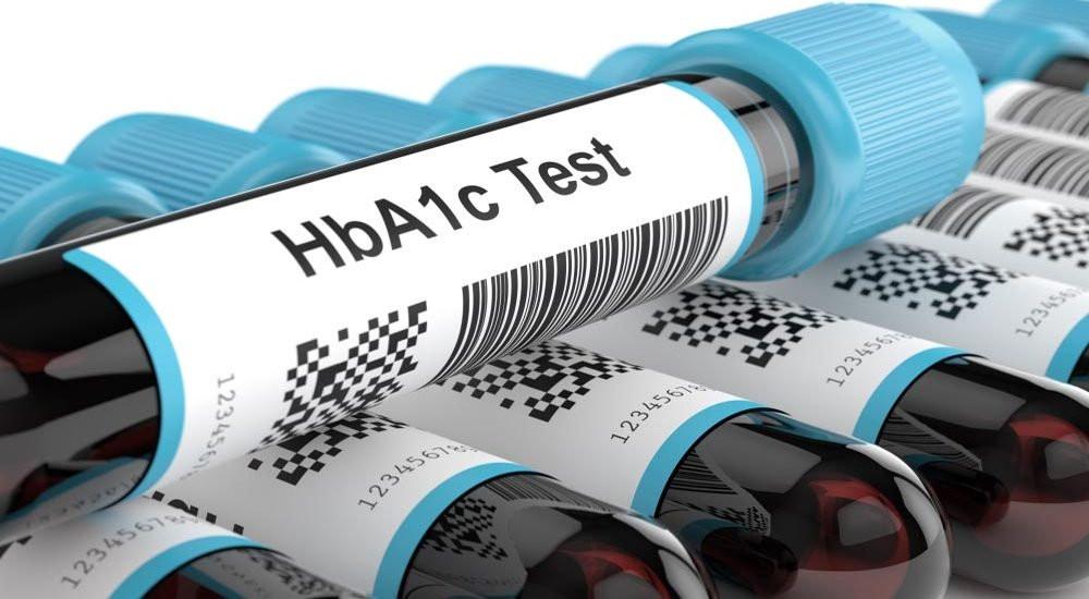 Tubos com amostra de sangue para exame de hemoglobina glicada.