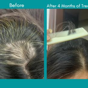 HAIR PROBLEMS / ALOPECIA