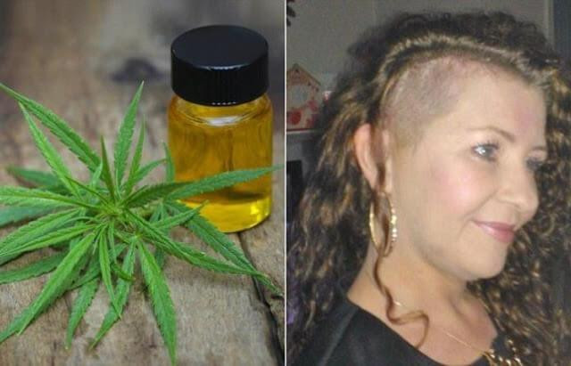 CBD Cannabis Cannabisöl Krebs Krebsheilung