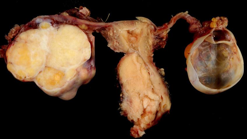 Tampons Glyphosat OB Gebärmutterhalskrebs