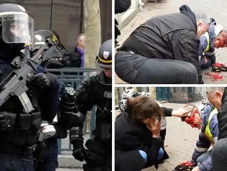 Grosse Schande: Französischer Polizist schiesst Gelbweste in den Hinterkopf!