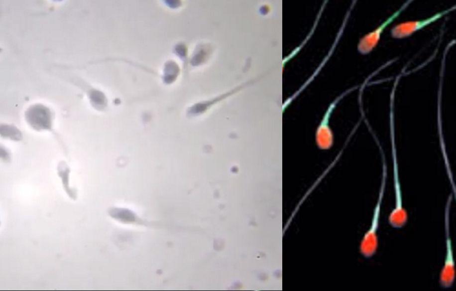 Sperma Unfruchtbarkeit Glyphosat