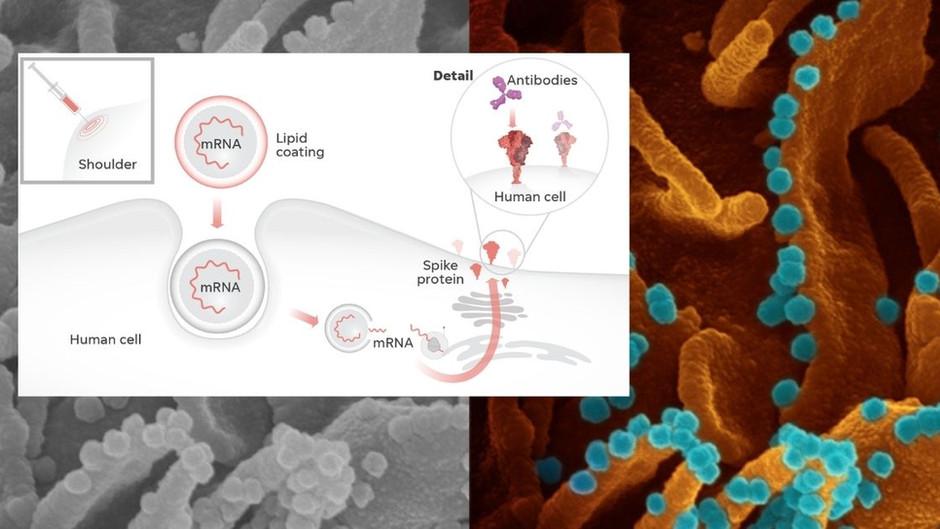 Spike-Protein-Shedding: Sind die mRNA-Spritzen ansteckend? (Ein brisanter Erfahrungsbericht)