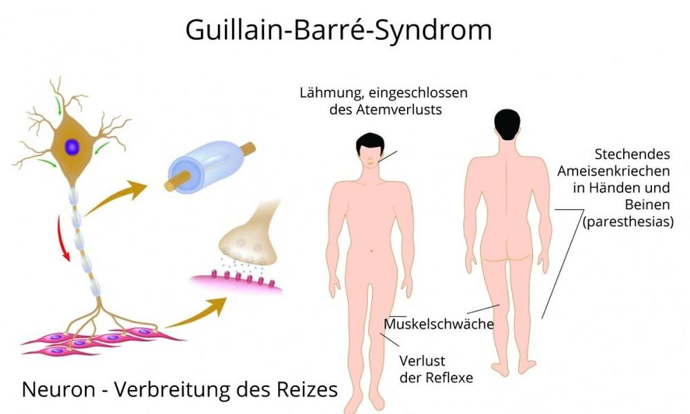 Guillain-Barré-Syndrom Impfschaden