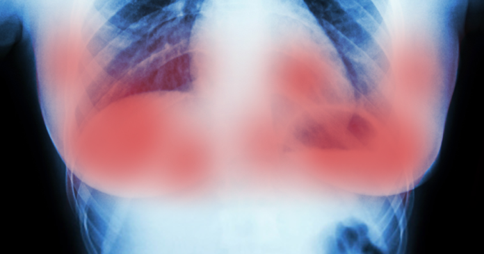 Brustkrebs legitim.ch
