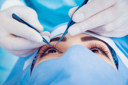 The operation on the eye. Cataract surge