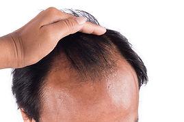 Haartransplantation vorher nacher