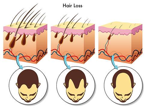 Hair Pen Methode