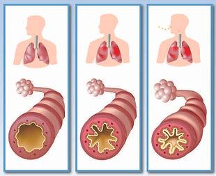Three-lungs.jpg