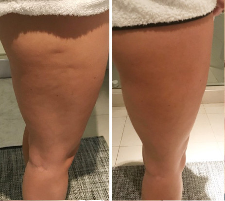 Before & After Cryoskin