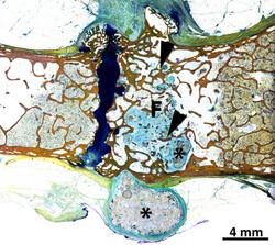 Bioresorbable Filler in Bone Defect