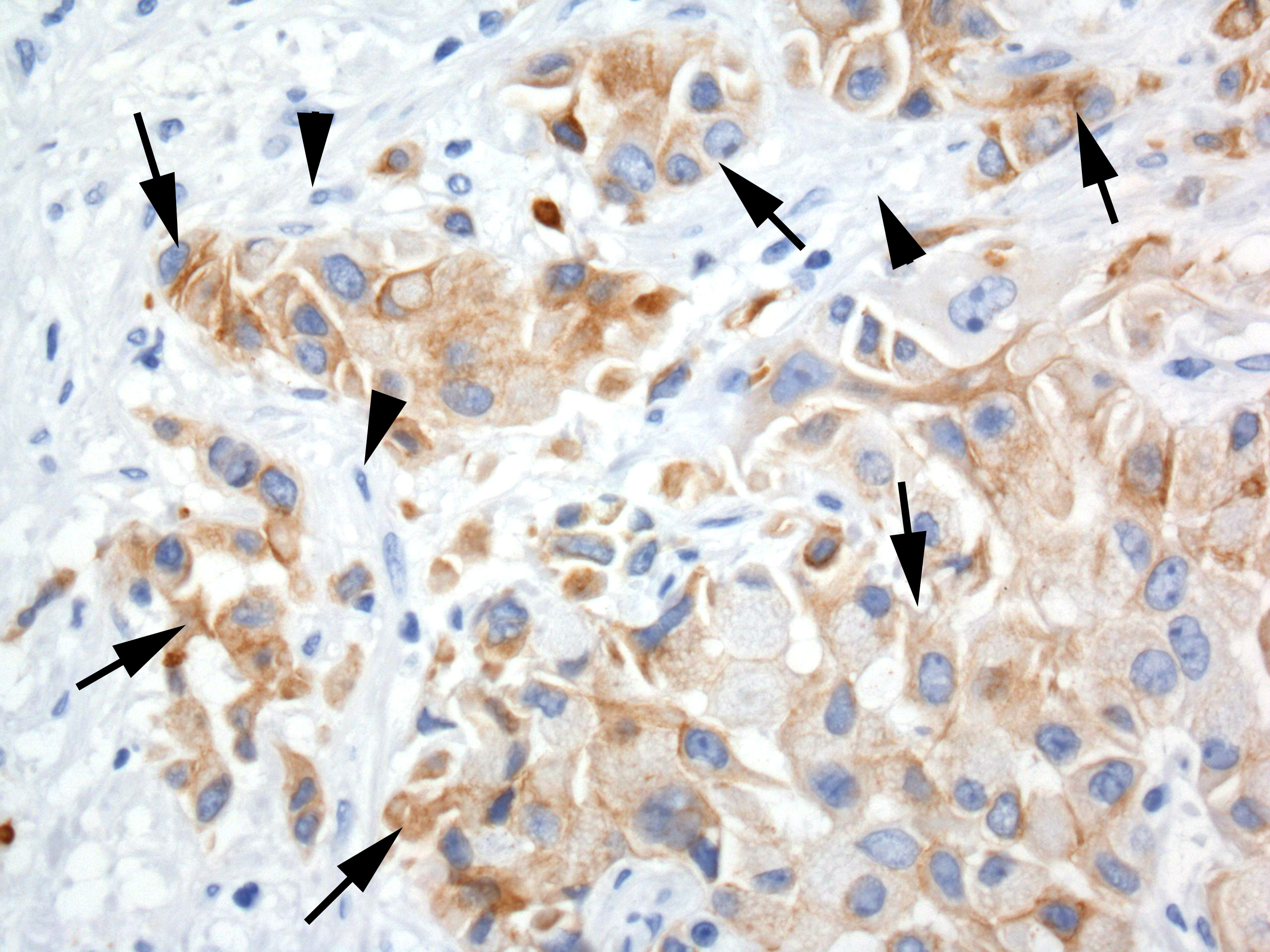 Human tumor xenograft in mouse stained with STEM121