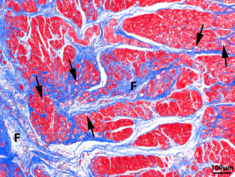 Myocardial Fibrosis