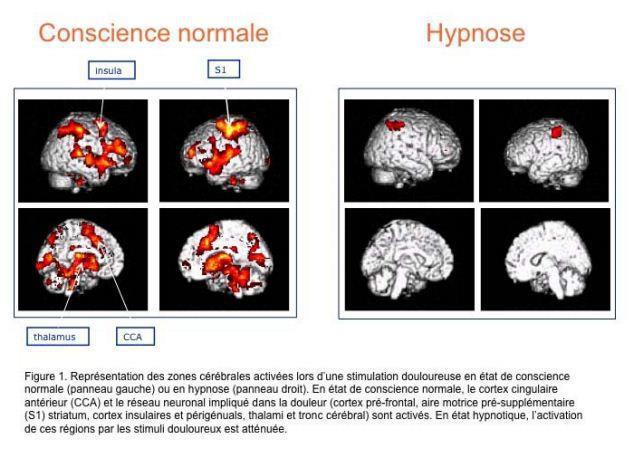 hypnose thérapie geneve