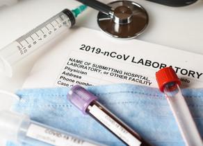 La FDA autoriza la primera prueba de anticuerpos en el punto de atención para COVID-19.