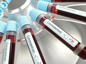 Vacuna contra coronavirus estaría lista en semanas, dicen científicos de Israel