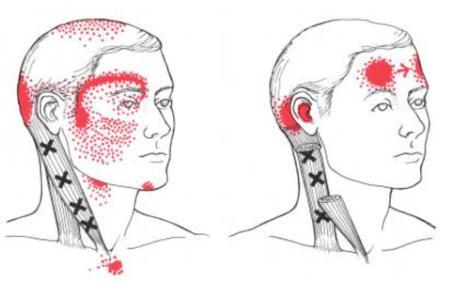 Myofascial Trigger Point Dry Needling for Myofascisal Pain