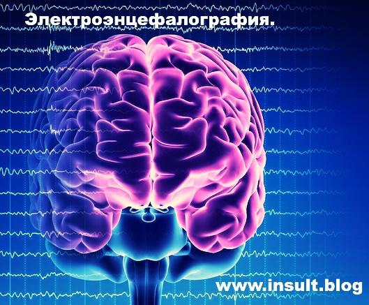 Инсульт Блог. Электроэнцефалография.