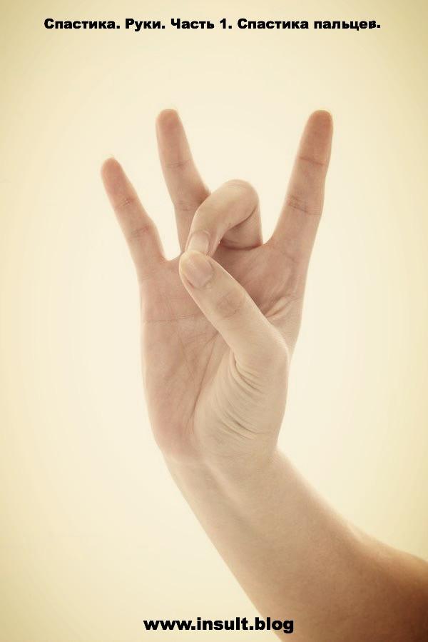 Инсульт Блог. Спастика пальцев. Часть 1.