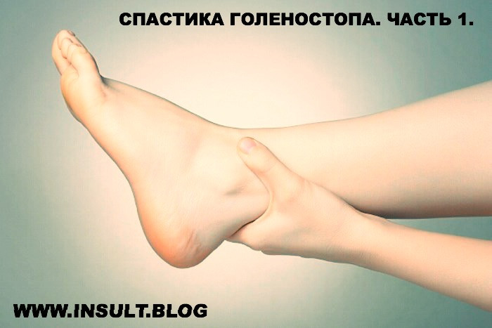 Инсульт Блог. Спастика голеностопа.