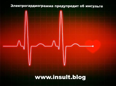 Инсульт Блог. Электрокардиограмма предупредит об инсульте.