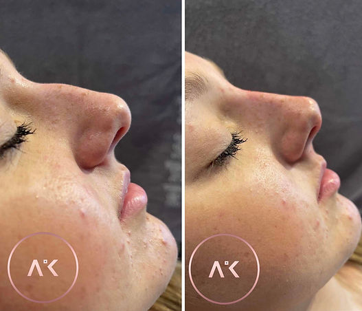 before and after of Nose Filler Treatment In Newcastle